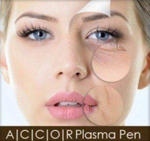 Plasma Pen Wien