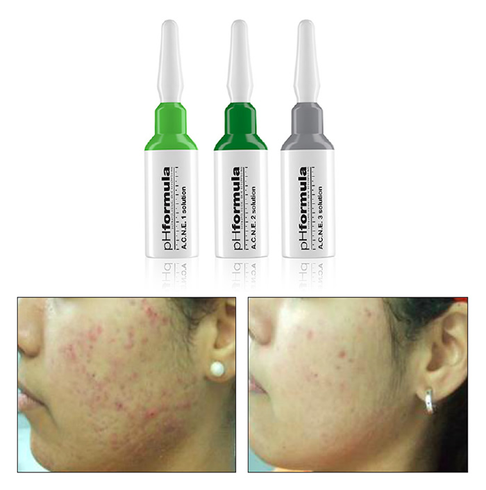 Treatment ACNE Wien